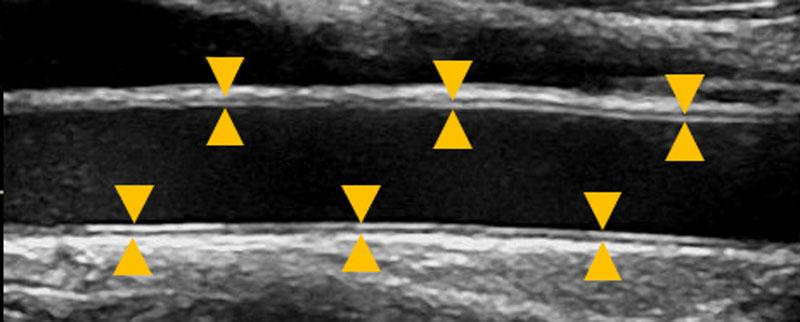 正常な血管の超音波画像。(▲は血管壁を示します)