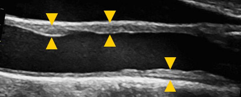 動脈硬化性の変化が見られる超音波画像。血管壁が厚く不整な様子が観察できます。