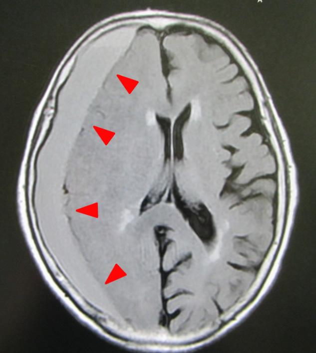 硬 膜 下 血腫 慢性