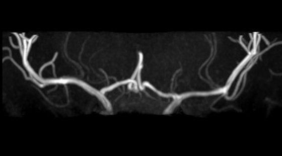 頭部MRI(穿通枝)