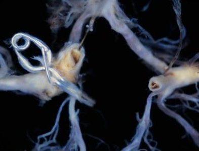 図5.クリッピング手術が行われた後交通一内頚動脈瘤