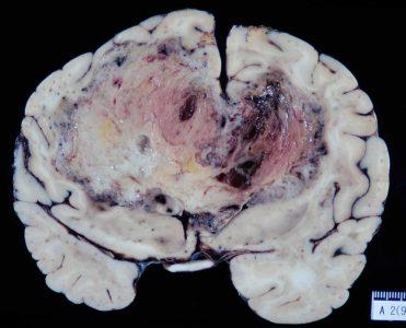 図6.自然経過の神経膠腫